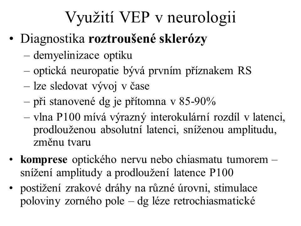 Využití VEP v neurologii