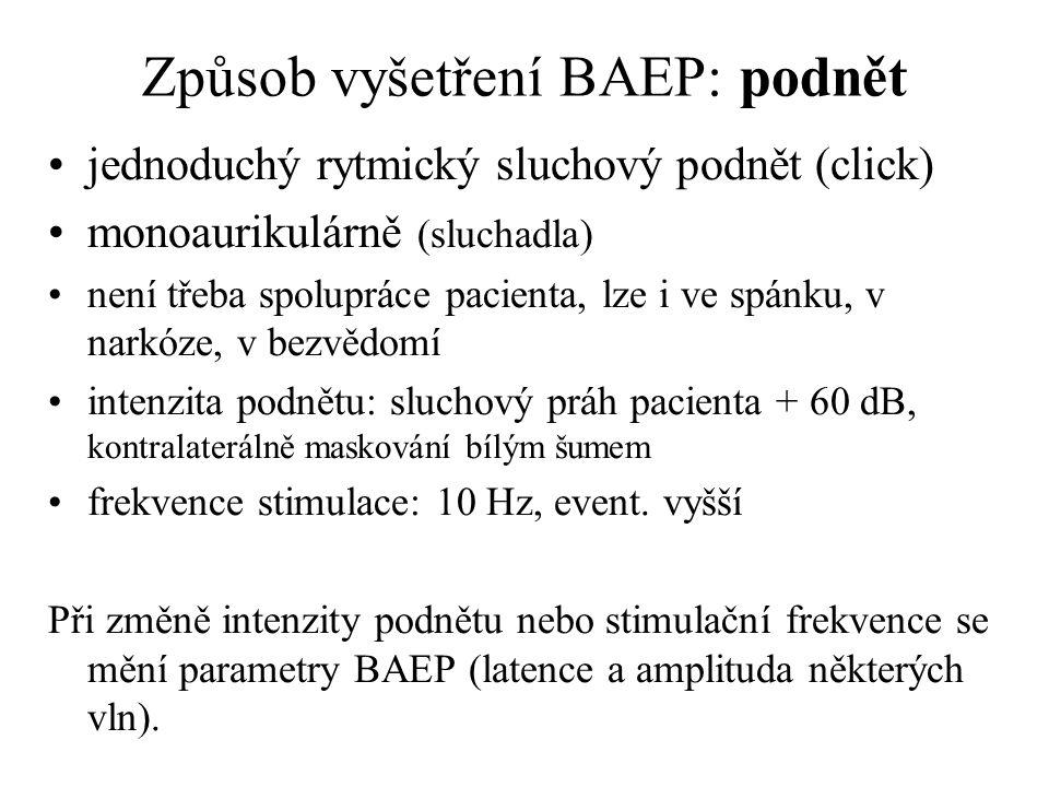 Způsob vyšetření BAEP: podnět