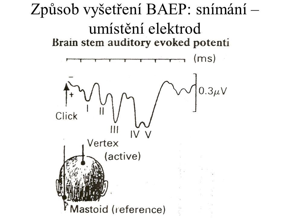 Způsob vyšetření BAEP: snímání – umístění elektrod