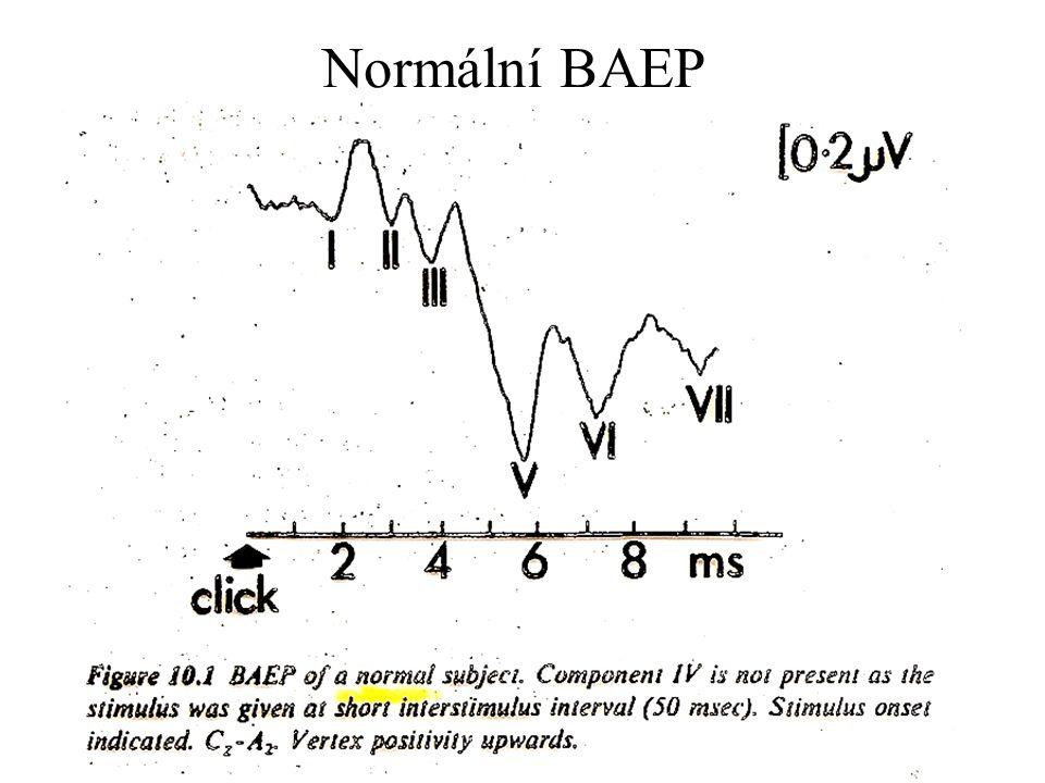 Normální BAEP