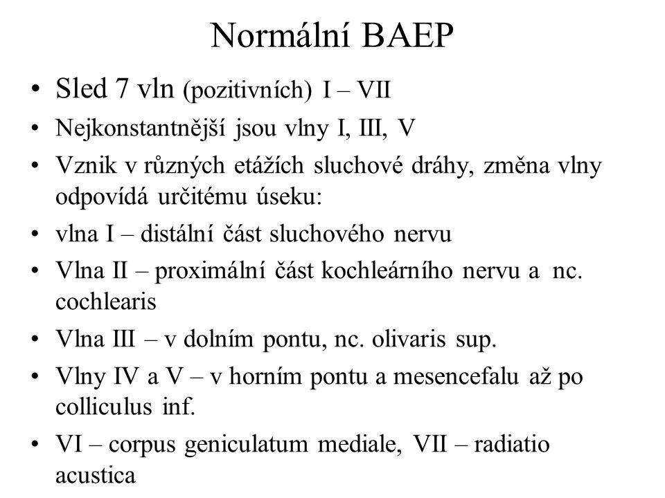 Normální BAEP Sled 7 vln (pozitivních) I – VII