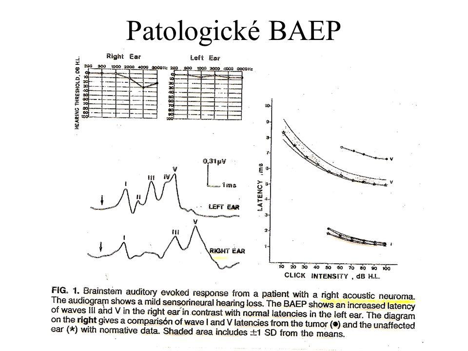Patologické BAEP
