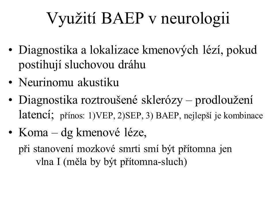 Využití BAEP v neurologii