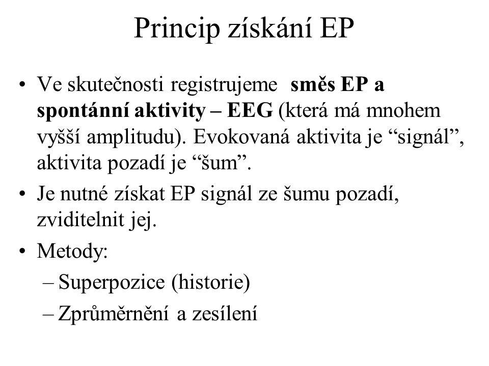 Princip získání EP