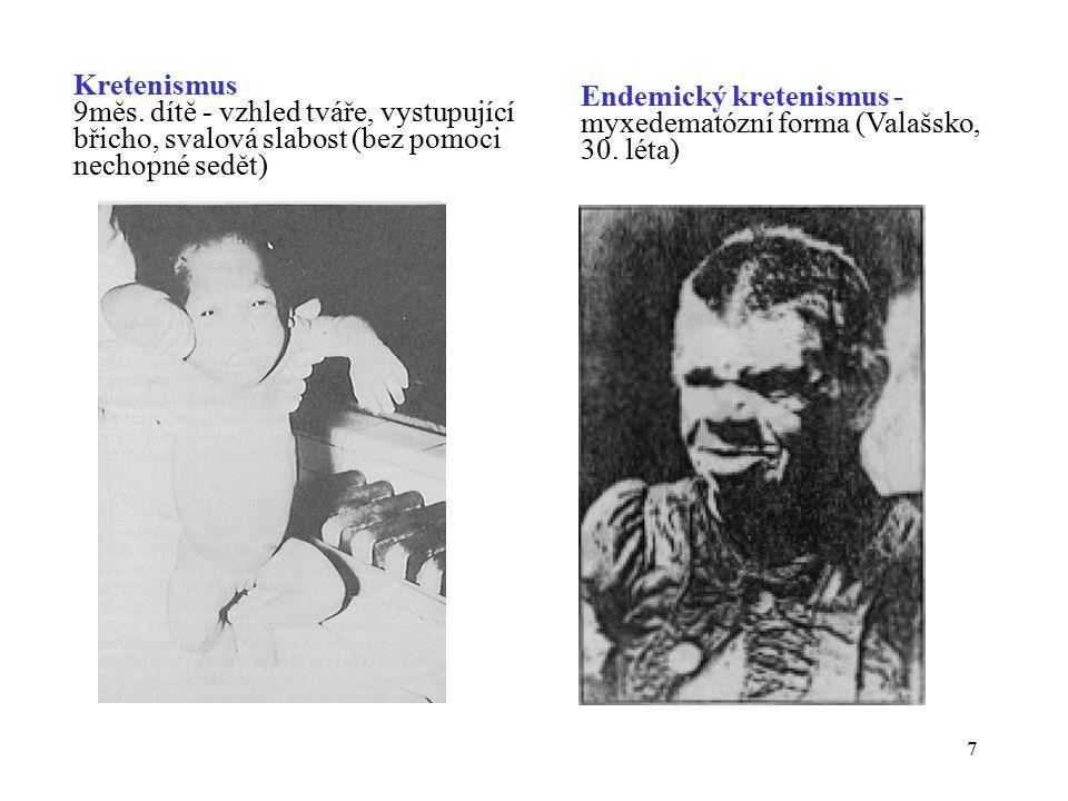 Kretenismus 9měs. dítě - vzhled tváře, vystupující. břicho, svalová slabost (bez pomoci. nechopné sedět)