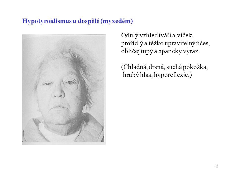 Hypotyroidismus u dospělé (myxedém)