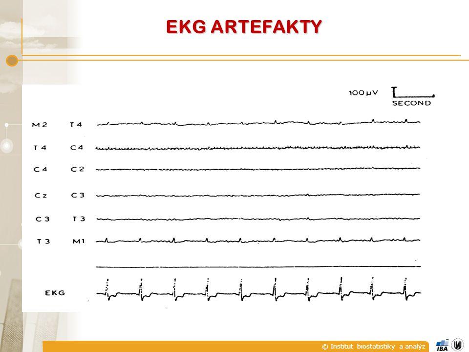 EKG ARTEFAKTY