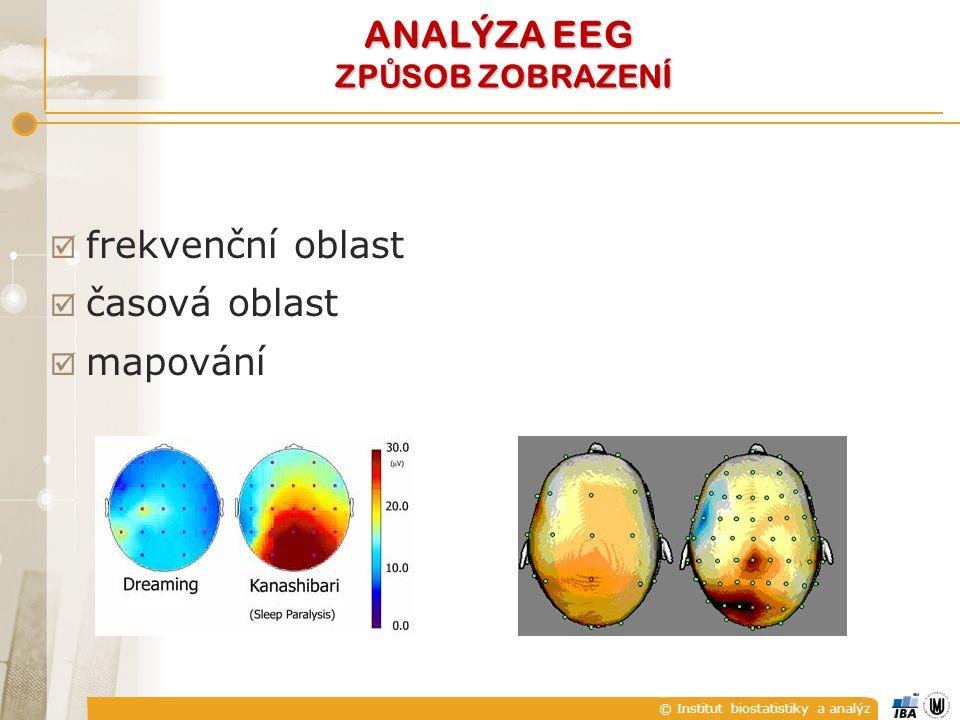 ANALÝZA EEG ZPŮSOB ZOBRAZENÍ