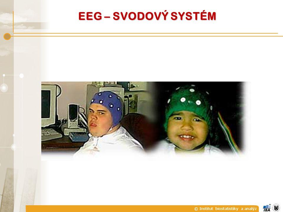 EEG – SVODOVÝ SYSTÉM