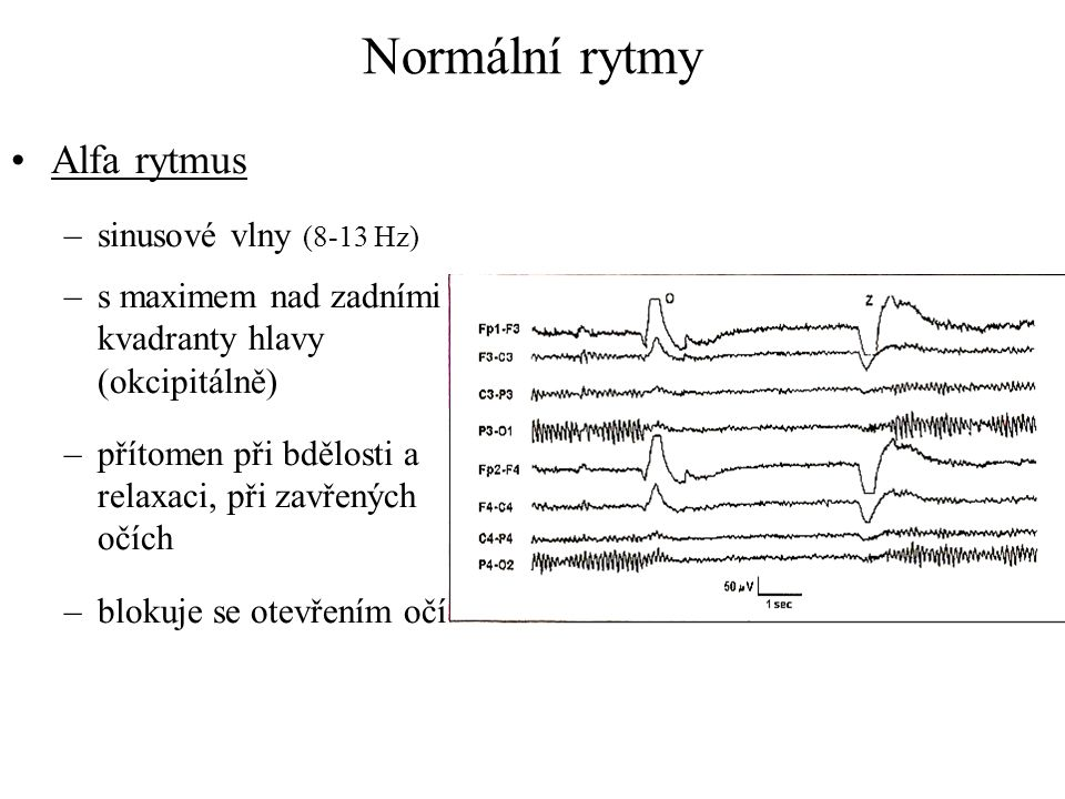 Normální rytmy Alfa rytmus sinusové vlny (8-13 Hz)