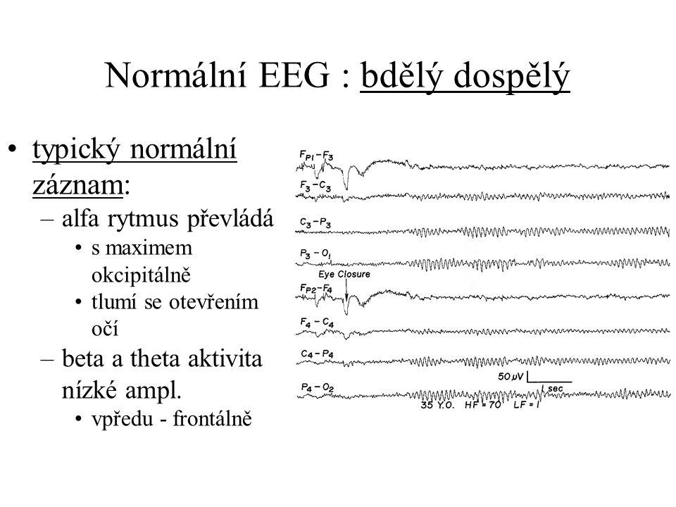 Normální EEG : bdělý dospělý