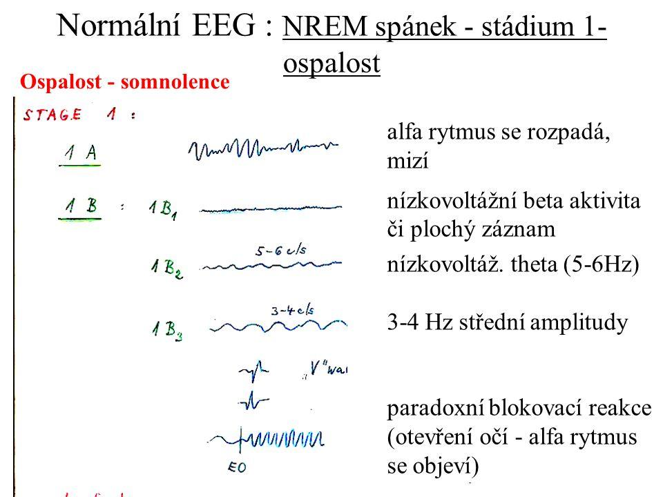 Normální EEG : NREM spánek - stádium 1- ospalost