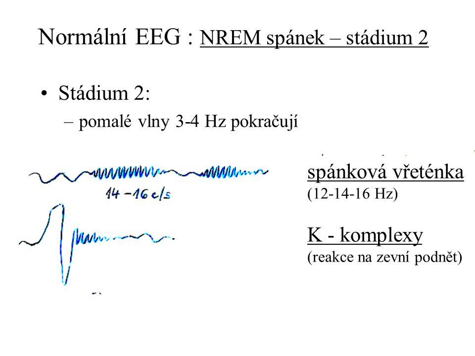 Normální EEG : NREM spánek – stádium 2