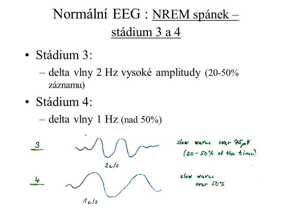 Normální EEG : NREM spánek – stádium 3 a 4