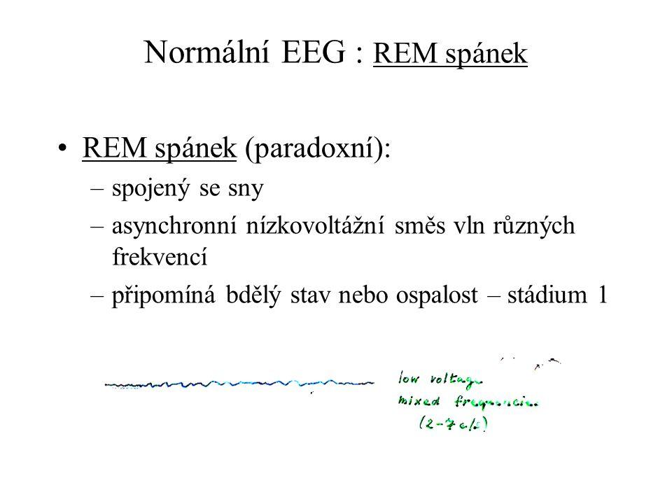 Normální EEG : REM spánek