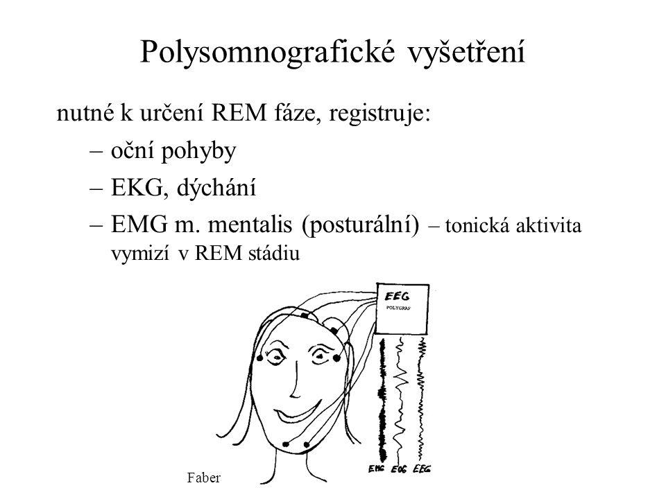 Polysomnografické vyšetření