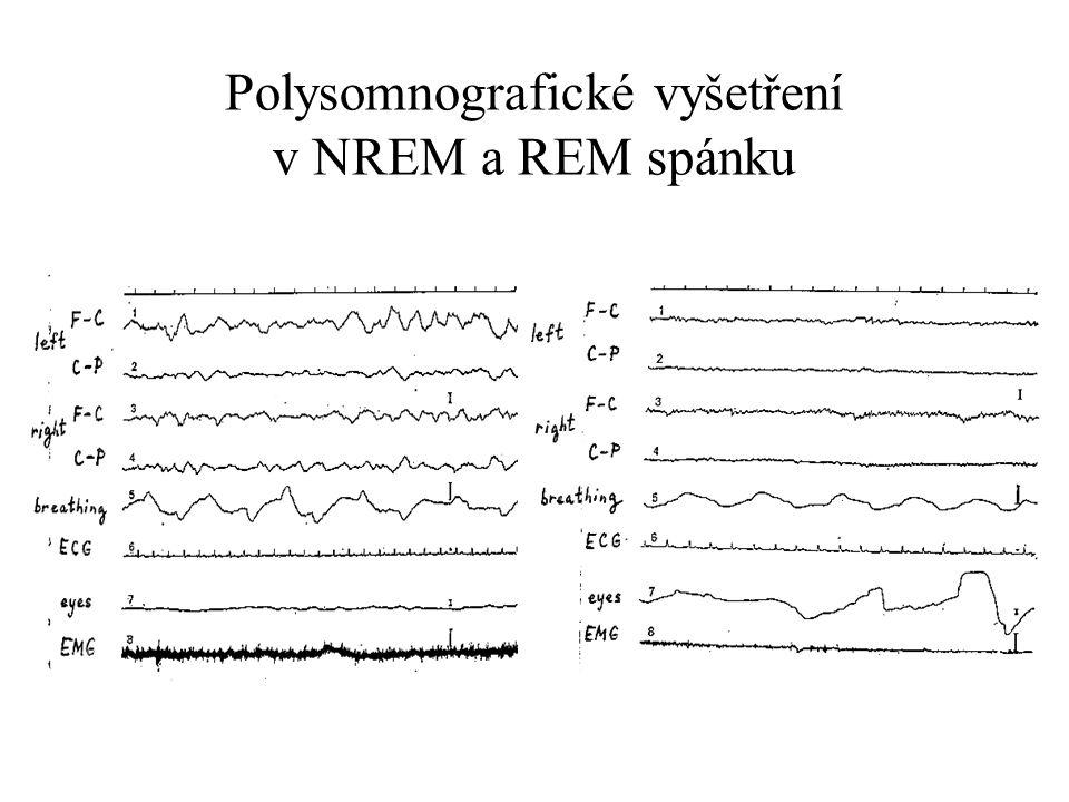 Polysomnografické vyšetření v NREM a REM spánku