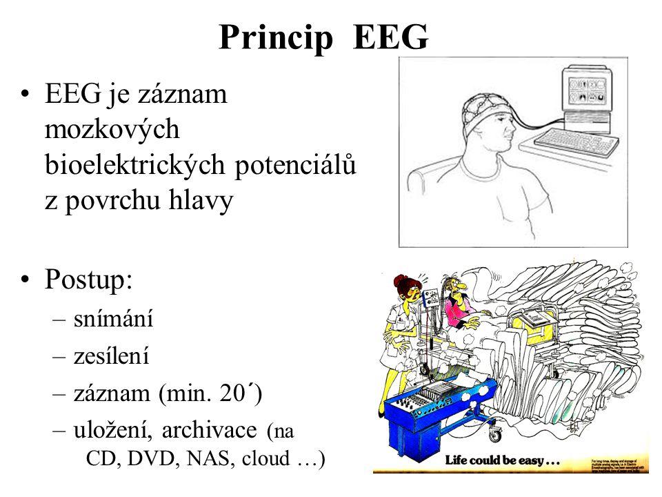 Princip EEG EEG je záznam mozkových bioelektrických potenciálů z povrchu hlavy. Postup: snímání.
