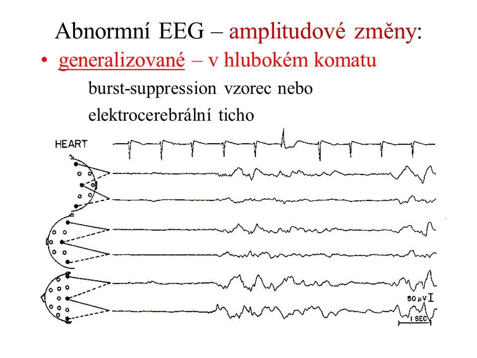 Abnormní EEG – amplitudové změny: