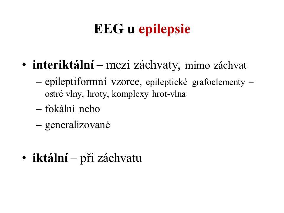 EEG u epilepsie interiktální – mezi záchvaty, mimo záchvat