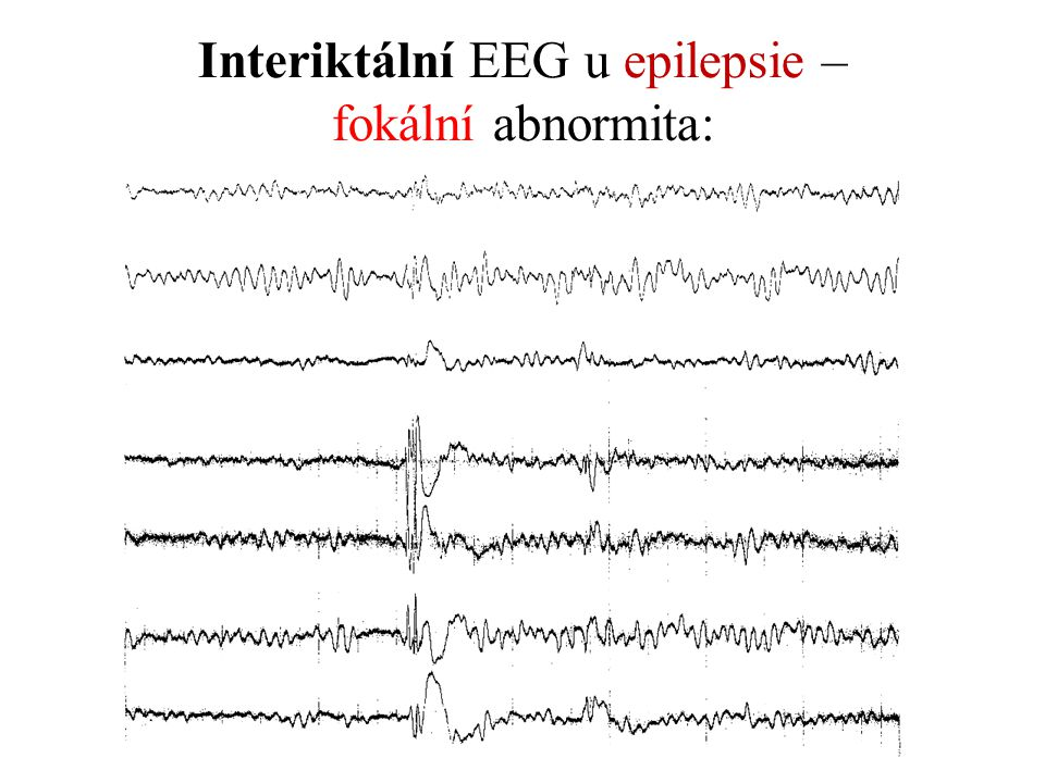 Interiktální EEG u epilepsie – fokální abnormita: