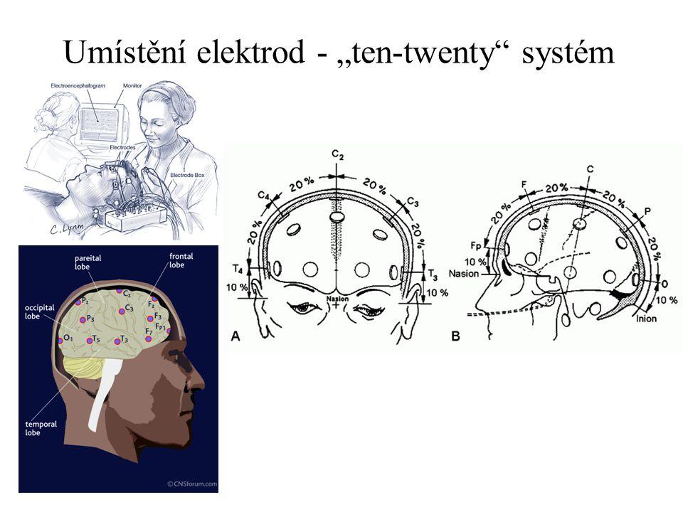 """Umístění elektrod - """"ten-twenty systém"""