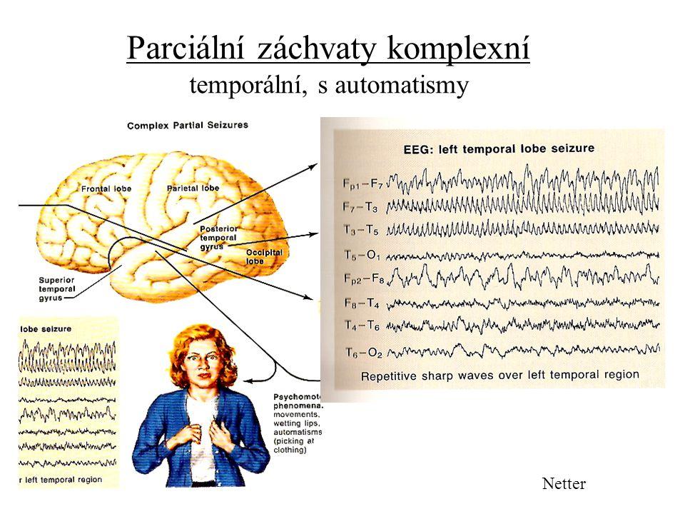 Parciální záchvaty komplexní temporální, s automatismy