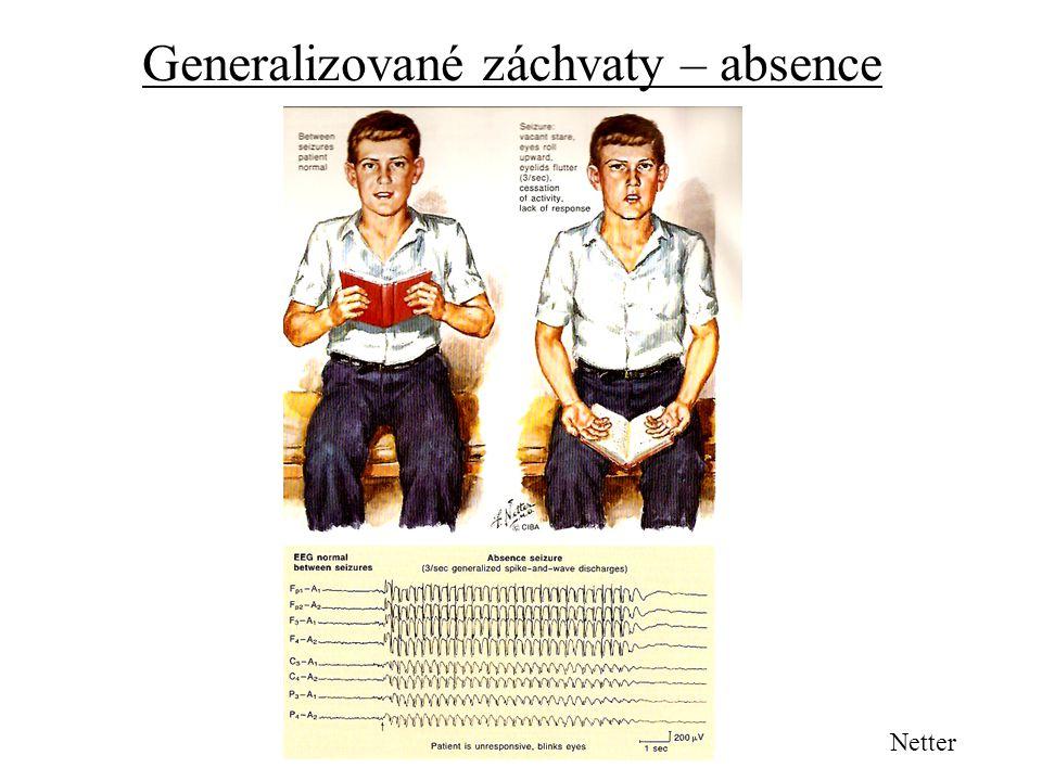 Generalizované záchvaty – absence