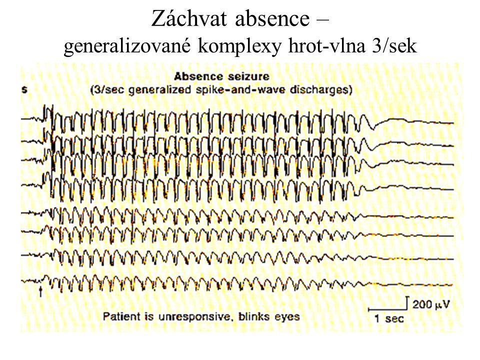 Záchvat absence – generalizované komplexy hrot-vlna 3/sek