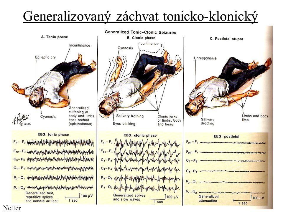 Generalizovaný záchvat tonicko-klonický