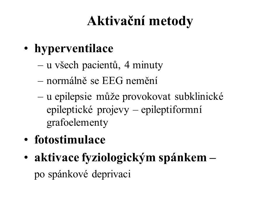 Aktivační metody hyperventilace fotostimulace