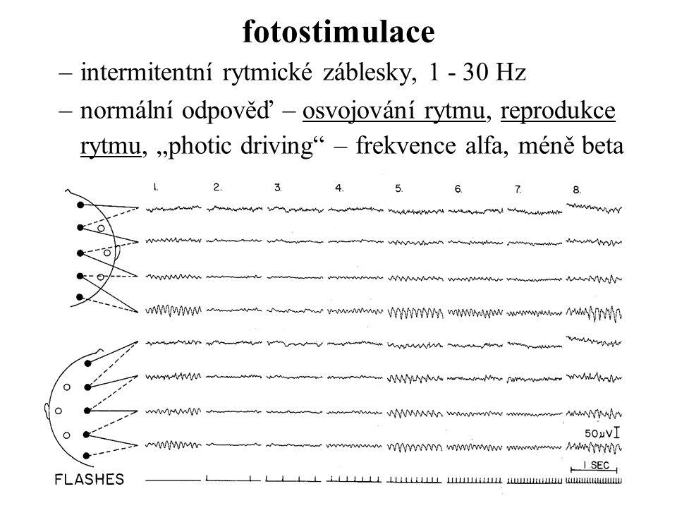 fotostimulace intermitentní rytmické záblesky, 1 - 30 Hz