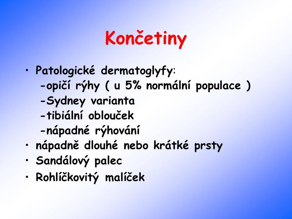 Končetiny Patologické dermatoglyfy: