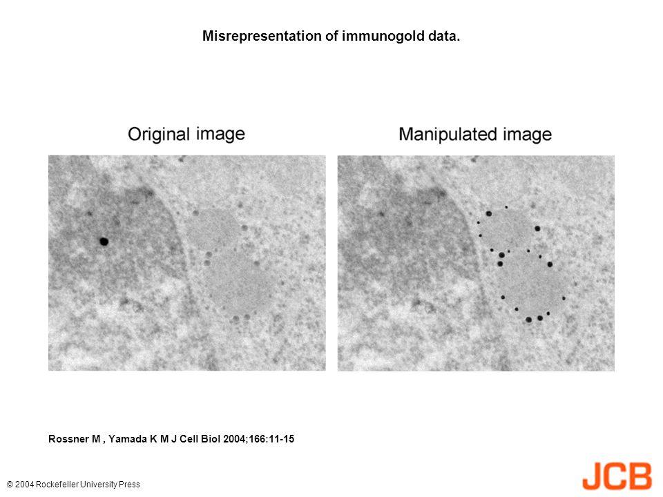 Misrepresentation of immunogold data.