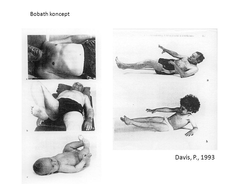 Bobath koncept Davis, P., 1993