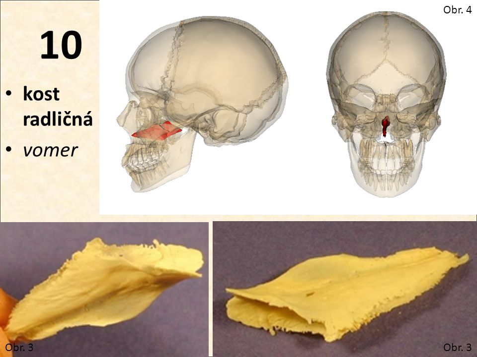 Obr. 4 10 kost radličná vomer Obr. 3 Obr. 3