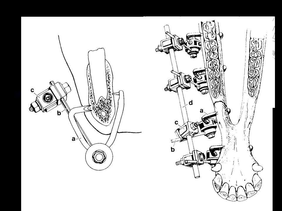 Zevní fixátor Transfixační kast Bezhřebový fixátor
