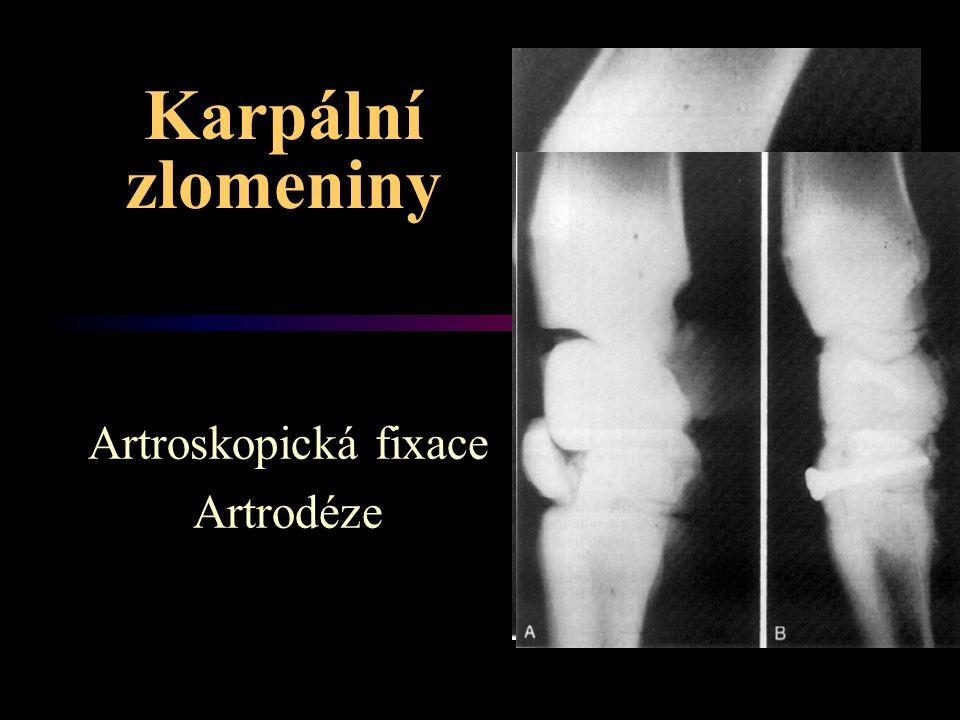 Artroskopická fixace Artrodéze