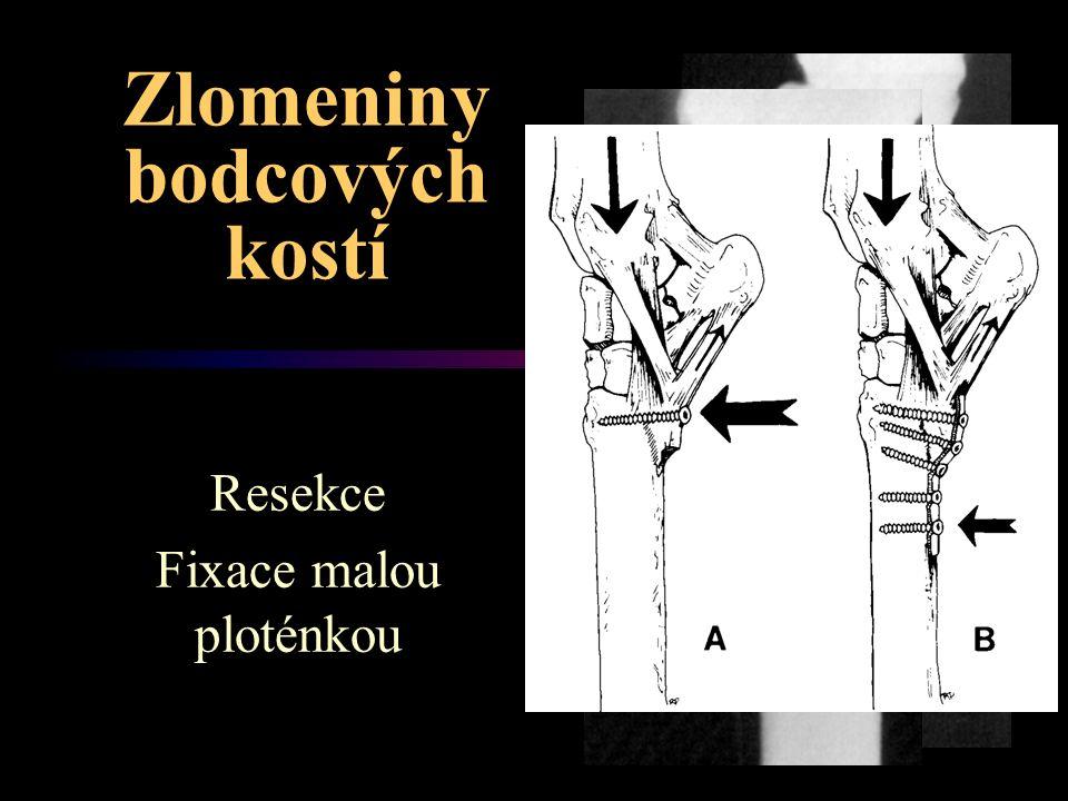 Zlomeniny bodcových kostí