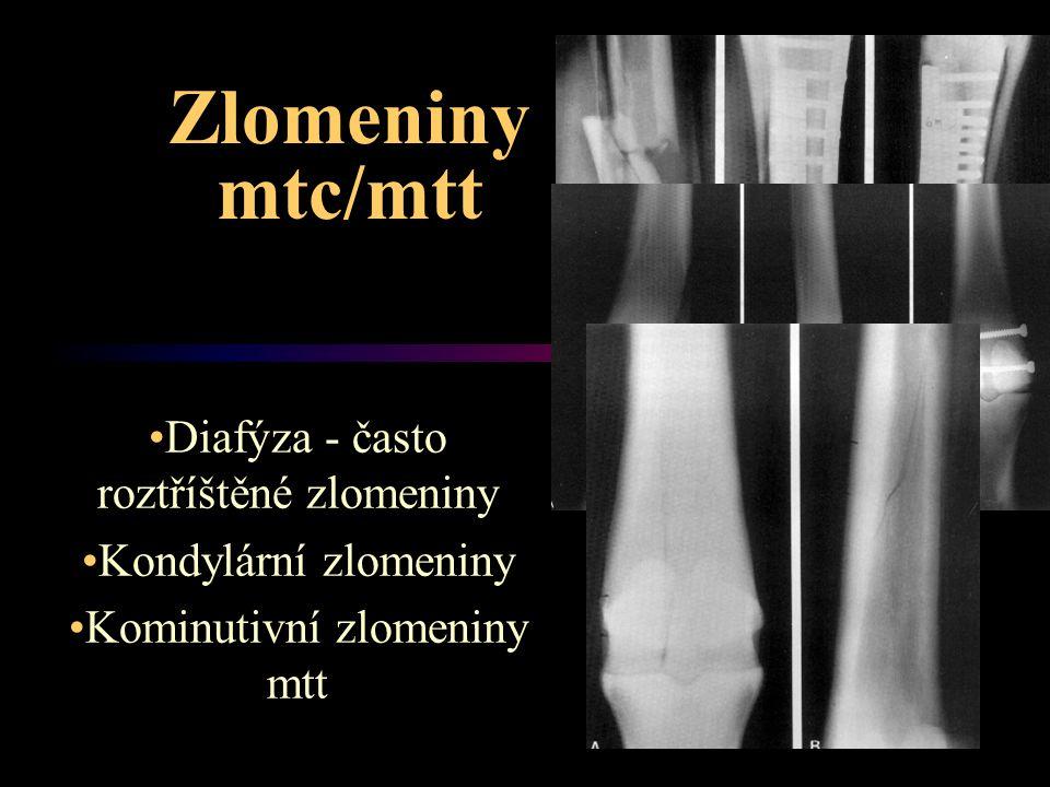 Zlomeniny mtc/mtt Diafýza - často roztříštěné zlomeniny