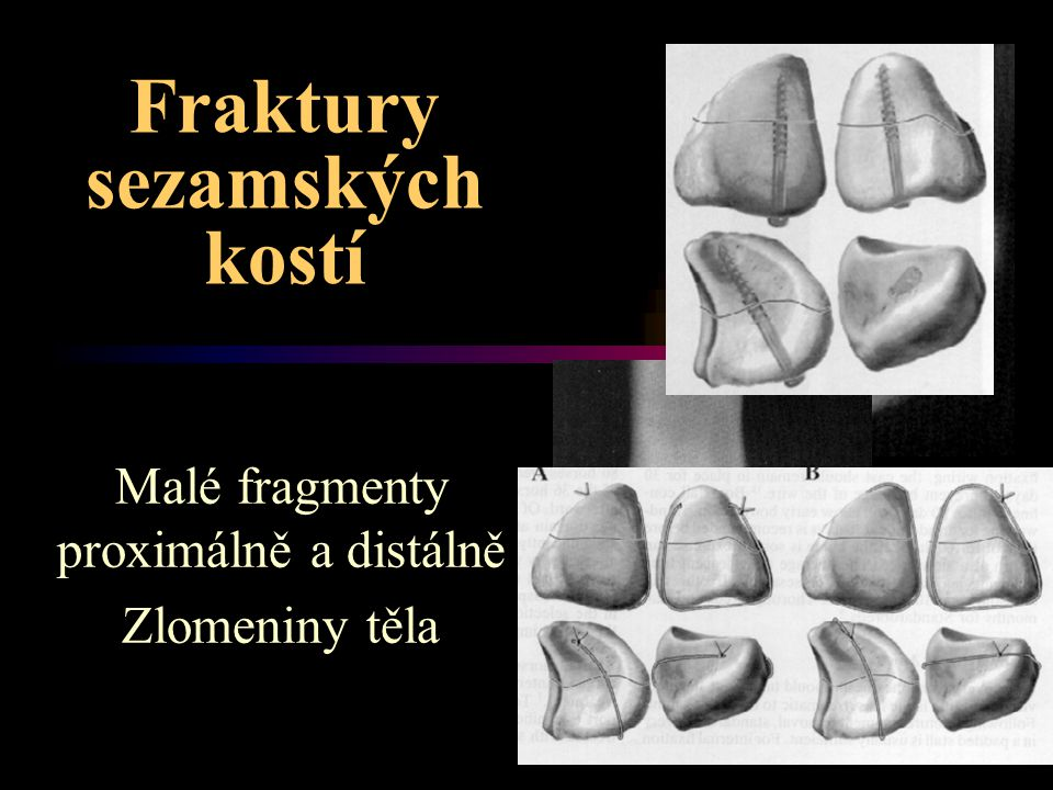 Fraktury sezamských kostí