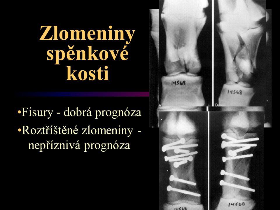 Zlomeniny spěnkové kosti