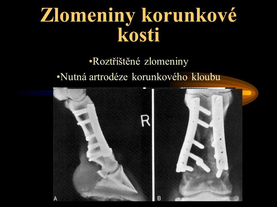Zlomeniny korunkové kosti