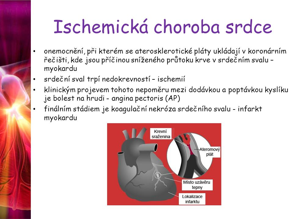 Ischemická choroba srdce