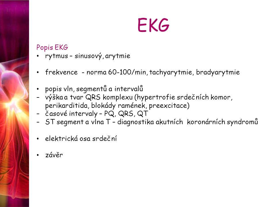 EKG Popis EKG rytmus – sinusový, arytmie