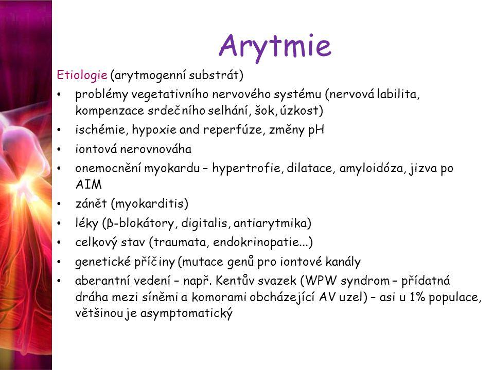 Arytmie Etiologie (arytmogenní substrát)