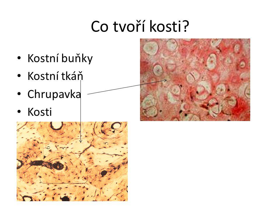 Co tvoří kosti Kostní buňky Kostní tkáň Chrupavka Kosti