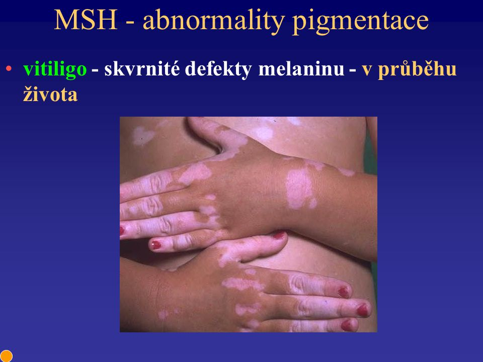 MSH - abnormality pigmentace