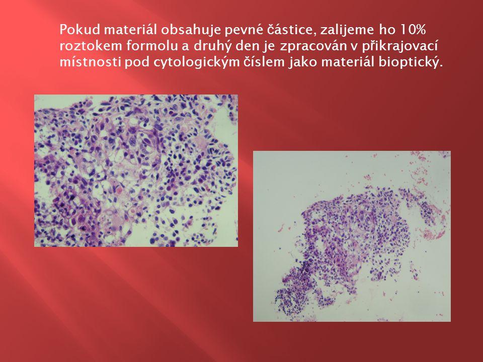 Pokud materiál obsahuje pevné částice, zalijeme ho 10% roztokem formolu a druhý den je zpracován v přikrajovací místnosti pod cytologickým číslem jako materiál bioptický.