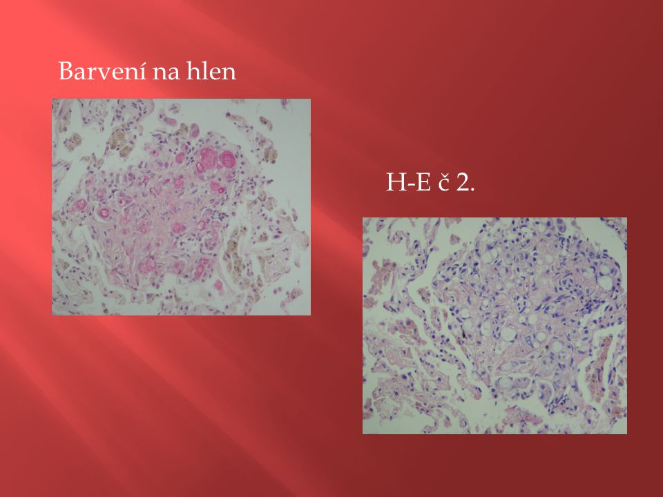 Barvení na hlen H-E č 2.